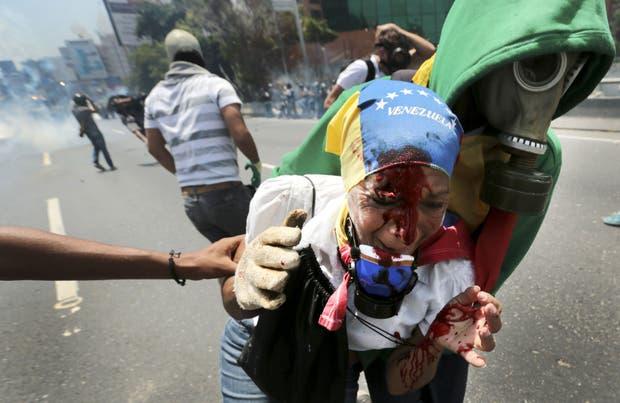 Una mujer herida ayer en Caracas durante las marchas antigubernamentales