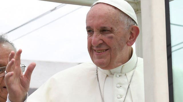 Así quedó el rostro del Papa luego del golpe