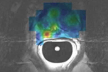 Hyper-polarized image scans by magnetic resonance (IRM) focused on a maneuver inserted before diagnostic tests.