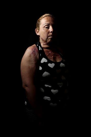 El 1 de enero de 2014 Karina Abregú se presentó en el hospital Eva Perón de Merlo con heridas de quemaduras causadas por su marido, Gustavo Albornoz, quien ya tenía 15 denuncias por violencia. Abregú lo llevó a juicio por tentativa de homicidio agravado por el vínculo, pero el acusado logró prorroga. Foto: Fernández Emmanuel