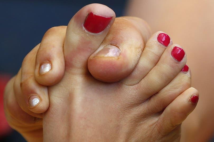 Si yo les dijera que hay un campeonato femenino del mundo de lucha de pulgares de pie... ¿Me creen?. Foto: Reuters