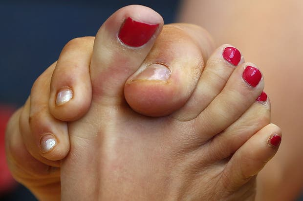 Si yo les dijera que hay un campeonato femenino del mundo de lucha de pulgares de pie... ¿Me creen?.  Foto:Reuters