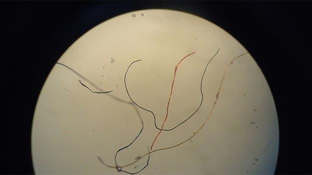 Fibras sintéticas extraídas del tubo digestivo de 11 especies de peces del Río de la Plata. Su origen más frecuente es el lavado de ropa y productos de higiene personal, como pañales y toallas higiénicas