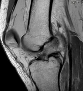 El ligamento cruzado anterior es una estructura que se encuentra en el interior de la articulación de la rodilla
