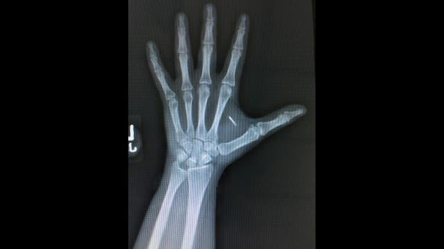 La mano de Janine Medina y el lugar donde se suelen implantar los chips subcutáneos