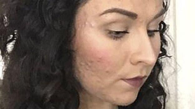 Judith dice que era incapaz de cubrir su acné con maquillaje