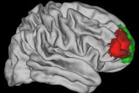 En esta imagen se puede ver, marcada con el color rojo oscuro, la zona del lóbulo frontal identificada por los científicos