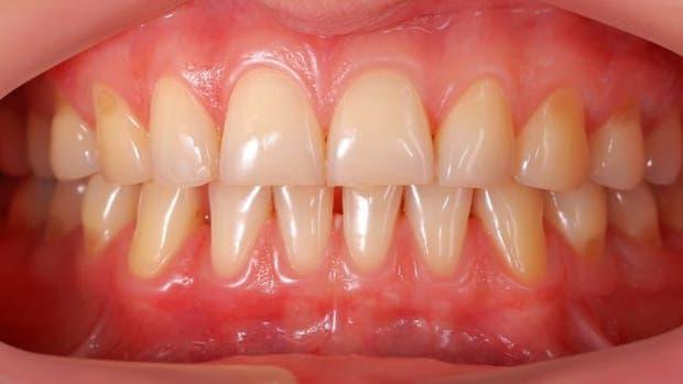 La inflamación de las encías leve se llama gingivitis, pero puede derivar en una periodontitis, más grave