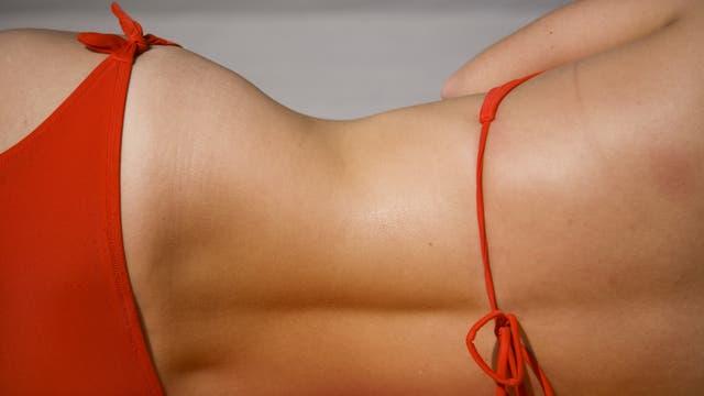 Hoyuelos de Venus, o esos agujeritos al final de la espalda