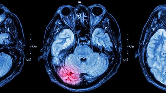Un estado de coma puede suceder cuando el cerebro sufre una lesión severa, como la que se puede ver en esta resonancia magnética