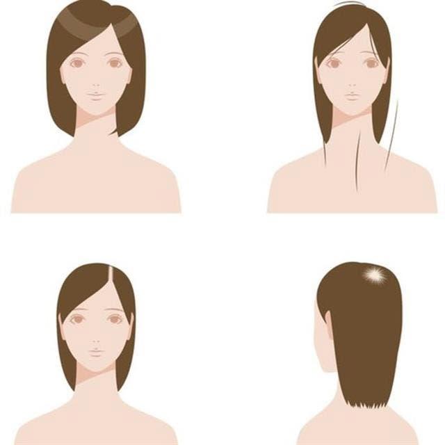 La caida del cabello puede ser por zonas pequeñas.