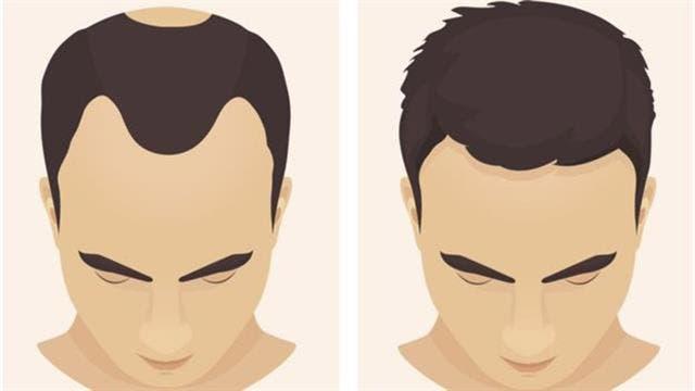La caida del cabello afecta más a hombres que a mujeres.