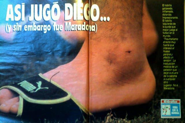 El tobillo de Diego, en el 90