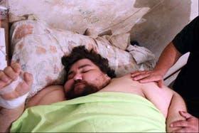 El hombre pesaba 350 kilos