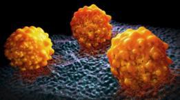 Este tumor hace que las células cancerígenas puedan saltar a otras partes del cuerpo.