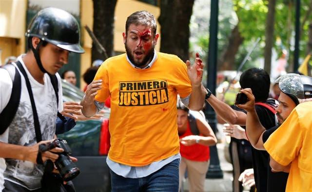 Juan Requesens, directivo de la opositora MUD, fue agredido ayer por partidarios chavistas