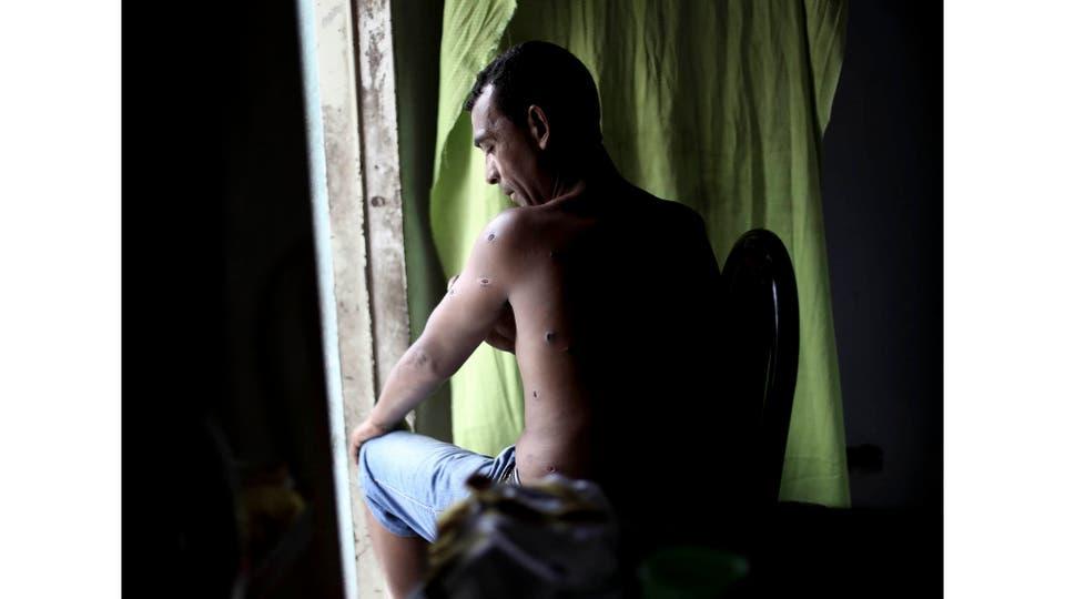 Gustavo González, director de la murga Los Auténticos Reyes del Ritmo, fue baleado por Gendarmería durante un ensayo en el barrio Illia 2 del Bajo Flores. Buenos Aires, 7 de febrero 2016. Foto: Dafne Gentinnetta
