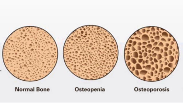 Los pasos hasta llegar a la enfermedad de los huesos