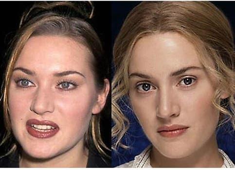 Kate Winslet también se hizo retoques en la nariz. Foto: /www.dailycognition.com