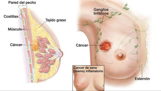 La posición de la espalda a la osteocondrosis