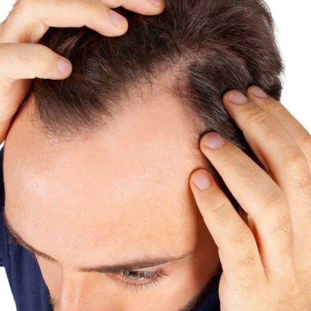 por qué se nos cae el pelo y cuándo puede ser signo de una