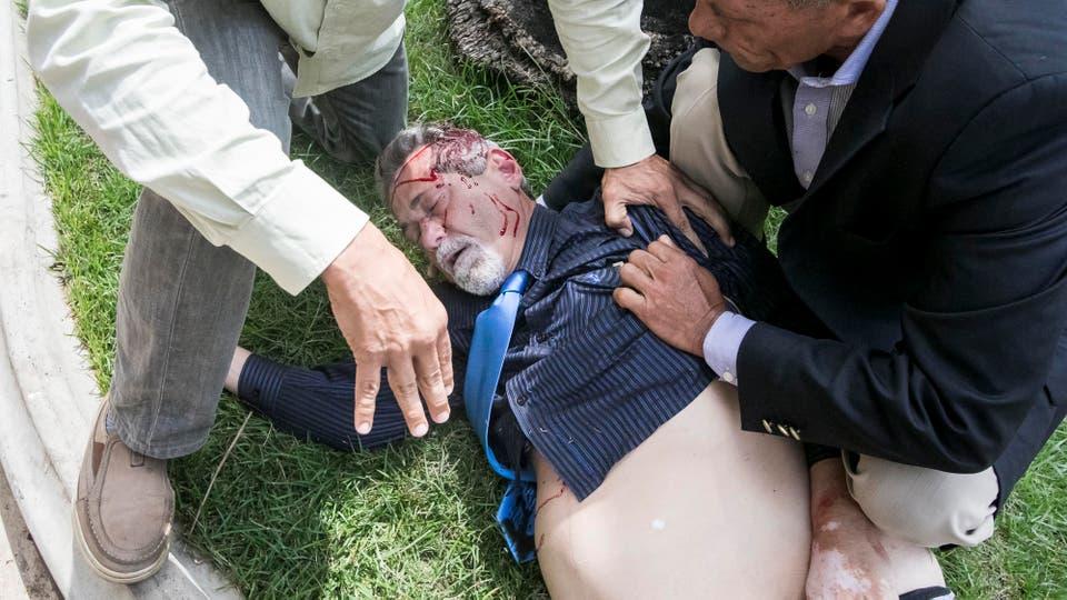 El diputado Américo De Grazia (c) es auxiliado tras ser golpeado por manifestantes que ingresaron a la Asamblea Nacional. Foto: EFE / Miguel Gutierrez