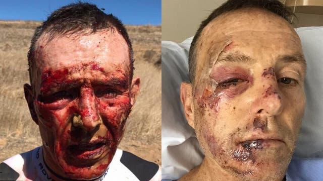 El rostro de Joel Stransky apenas sufrió el accidente con su bicicleta y durante su internación