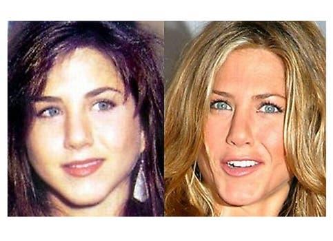 La operación de nariz de Jennifer Aniston no es ningún secreto; hasta su personaje de Friends, Rachel, admitió haber pasado por el quirófano. Foto: /www.dailycognition.com