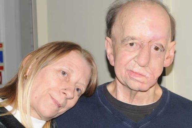 Eric Moger con el implante creado con una impresora 3D y un proceso que le permitió reconstruir su rostro