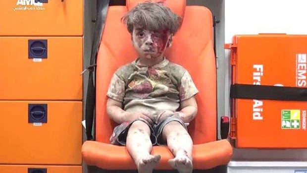 Omran se convirtió en uno de los símbolos de la brutalidad de la guerra en Siria
