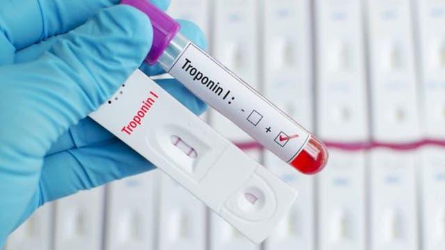 El análisis, llamado troponina, detecta los niveles de esta proteína que se libera cuando el músculo del corazón está dañado