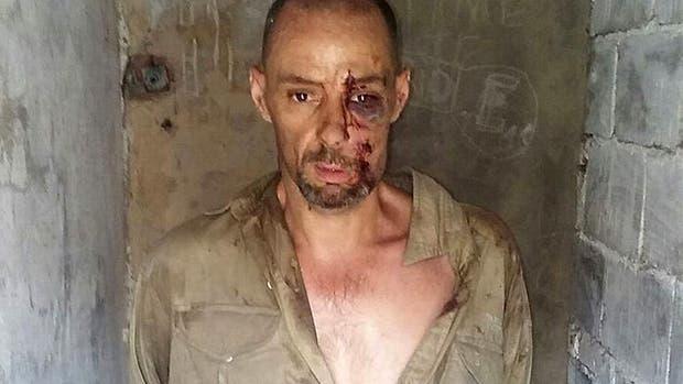 Martín Lanatta, en la primera imagen que se difundió tras su detención; en su rostro se nota el golpe provocado por el vuelco de la camioneta que manejaba