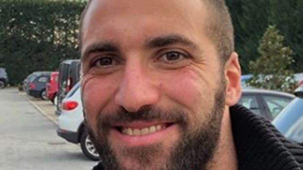 Higuaín será operado y preocupa a la Juventus
