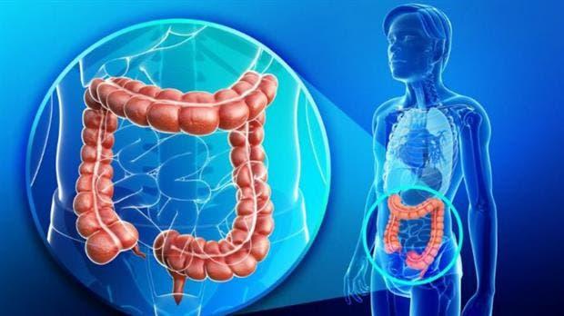 Entre el 30 y el 50% de los tumores se pueden prevenir