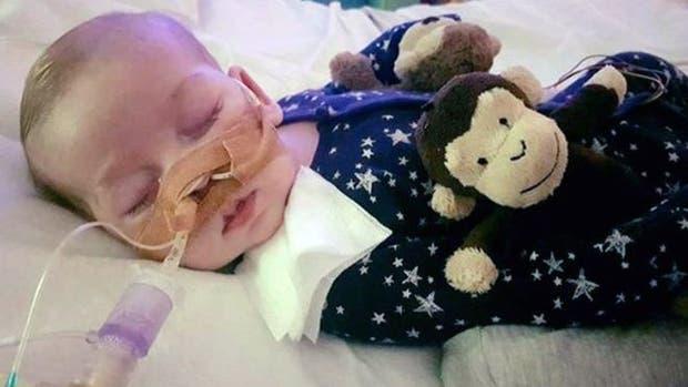 Debido a la enfermedad, Charlie tiene daño cerebral irreversible, no puede ver ni oír
