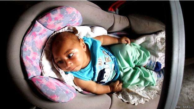 Con cuatro meses, el bebé aún no ha tenido una prueba para medir su visión y audición