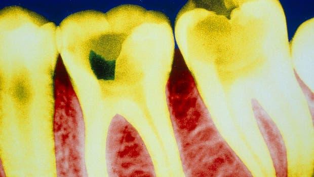 La caries está causada normalmente por la actividad de la placa bacteriana, que genera ácidos que da?an el esmalte de los dientes
