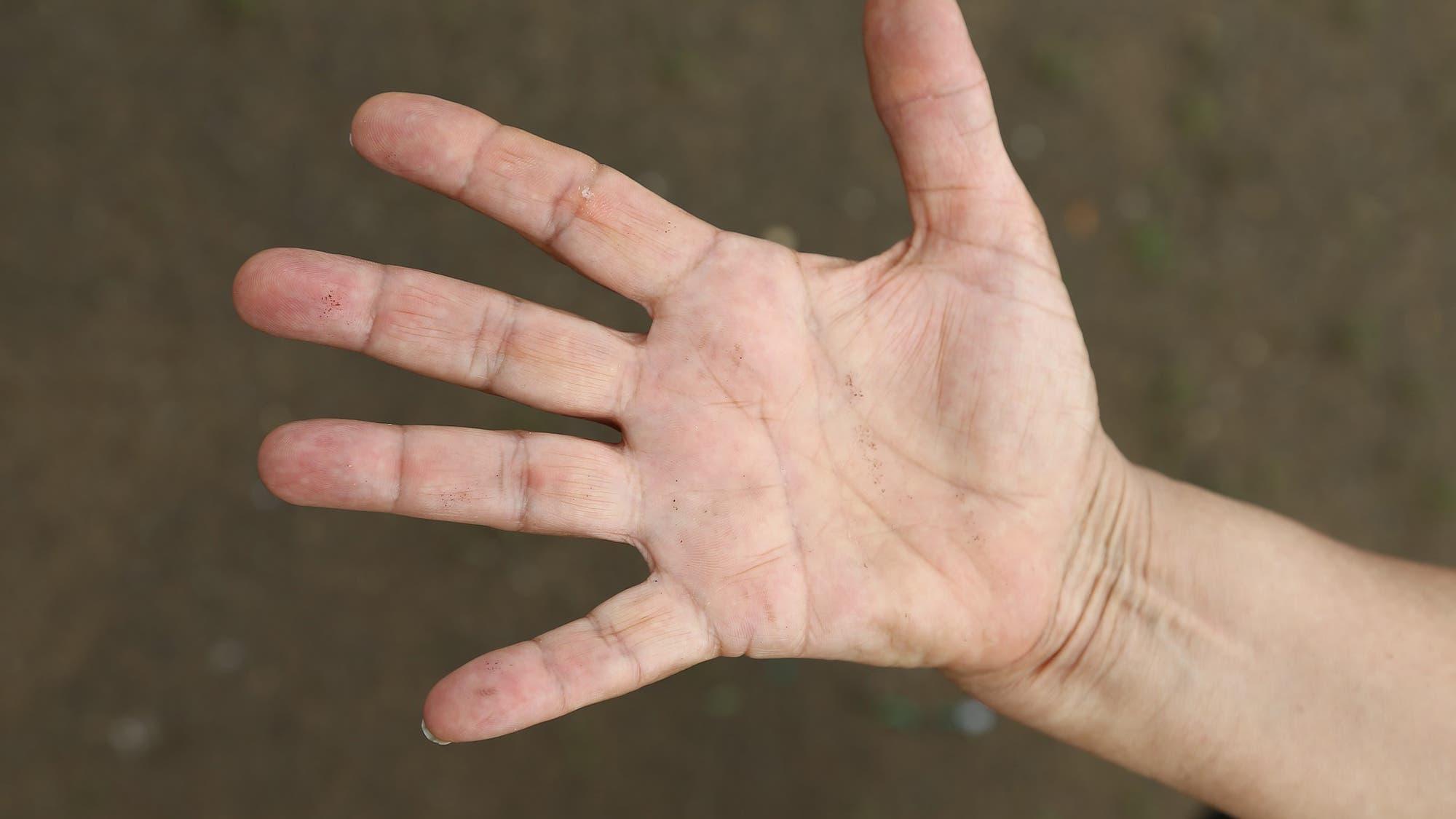manos dormidas hormigueo