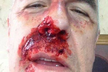 Dady Brieva compartió una polémica foto en 2015 e hizo un chiste sobre supuesta violencia política