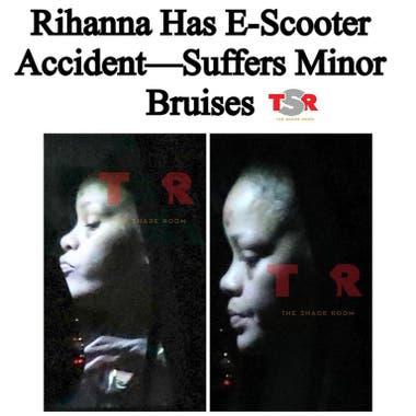 El sitio TMZ publicó fotos de la cantante en donde se ven las secuelas del accidente