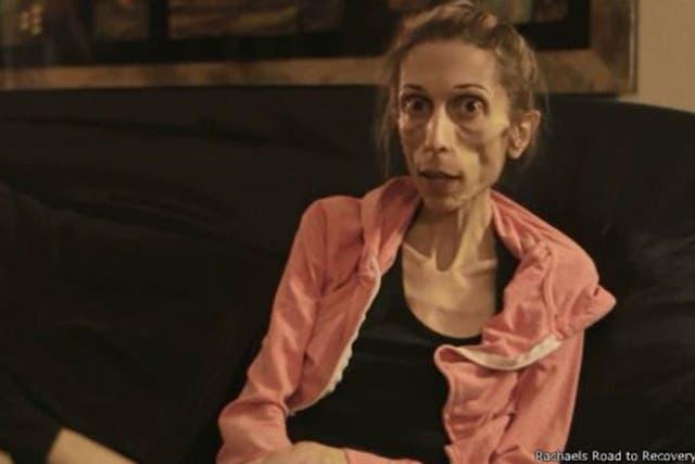 Rachael Farrokh, la actriz estadounidense de 37 años que pesando 20 kilos pidió ayuda online