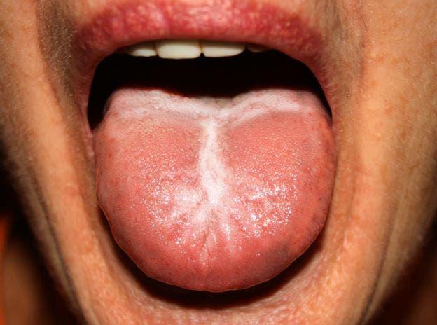 Enfermedades de transmision sexualidad y sus sintomas