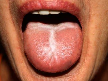 Uno de los síntomas de la sífilis son parches o manchas blancas en la boca, labios y lengua.
