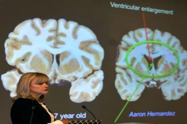 La investigadora Ann McKee presentó los alarmantes resultados del estudio del cerebro de Aaron Hernandez.