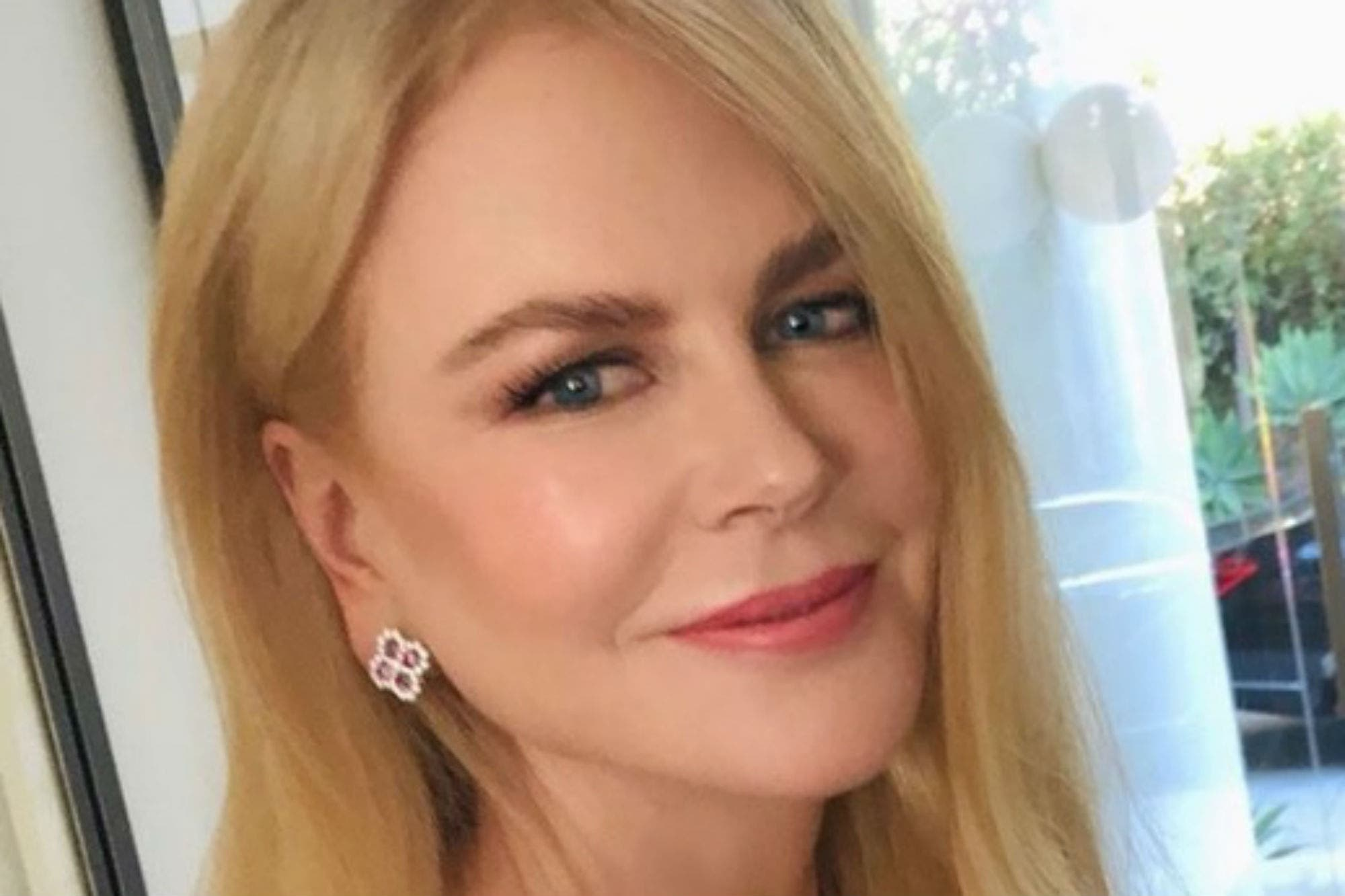 Nicole Kidman se recupera de un accidente que sufrió cuando salió a correr
