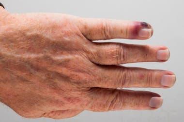 La septicemia es causada cuando el sistema inmune entra en colapso y, en lugar de combatir una infección, también comienza a atacar otras partes del cuerpo