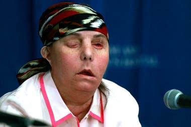 Carmen Blandin Tarleton luego de su primer traspalante de cara