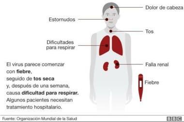 Síntomas del coronavirus originado en China
