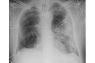 Rayos X de un hombre de 68 años con síntomas severos de covid-19. Las áreas blancas en los bordes muestran la inflamación de sus alveólos, la razón de por qué algunos pacientes presentan dificultades para respirar.